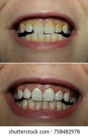 Real before and after tartar plaque removal, yellow tartar dental coating dirty teeth and white clean one... true unprofessional photos with no photoshop.
