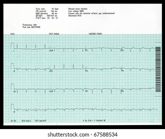 A real EKG shows an abnormal result.