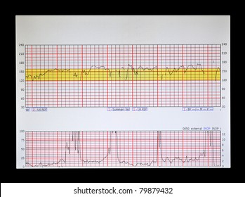 a real Fetal Heart and Uterine Contraction strip physicians and nurses use to monitor labor before birth.