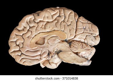 Real human half brain anatomy isolated on black background