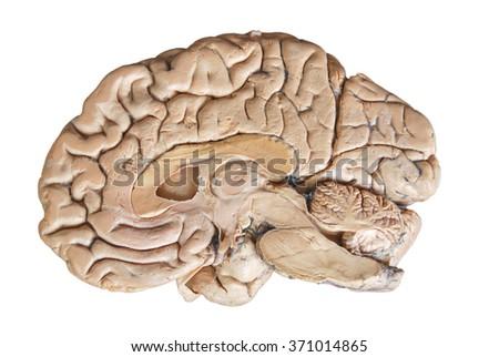 Half Brain Diagram - Schematics Wiring Diagrams •