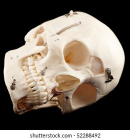 real human skull modified for medical education