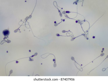 real Human Sperm and cell bodies photomicrograph viewed under a 100x objective. Panorama.