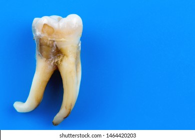 a real human tooth is affected by caries and with a curved root at an angle of almost 90 degrees
