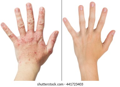 Real photo girl's hand, the patient with eczema before and after treatment. Isolated white background