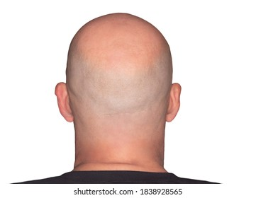 Rear view of a bald head. Adult with alopecia or hair loss. Adult man head view isolated on white background