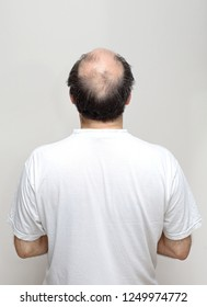 Rear View of Hair Loss at Middle Age Bald Man