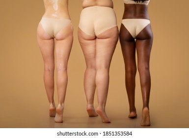 Rear View Of Three Women With Different Body Types In Underwear, Legs Of Multi-Ethnic Ladies With Diverse Skin Conditions Standing In Lingerie On Beige Studio Background, Cropped Image With Free Space