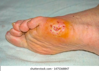 Recovering of a lesion in diabetic foot