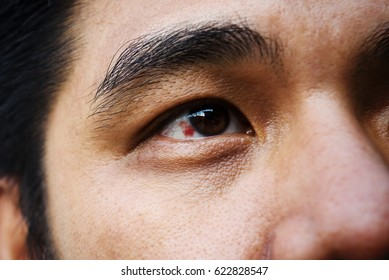 Red bloodshot eye in a middle aged asian man
