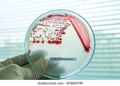 red colony in petridish with microbiology concept