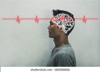 Rotes Epizentrum der Schmerzen des Gehirns. Die Silhouette des Kopfes und des Volumens des Gehirns. Gehirnschlag Konzept.Kopfschmerzen.