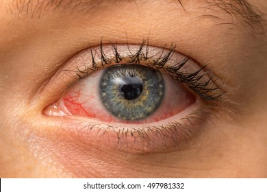 Red Eyes Images, Stock Photos & Vectors | Shutterstock