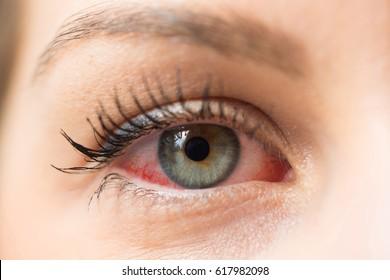 Red eye for allergy