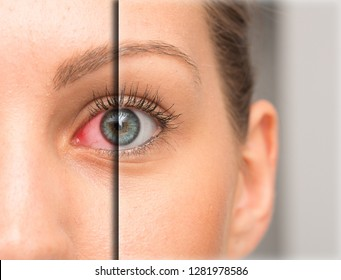 Red eye before and after eyedrop treatment
