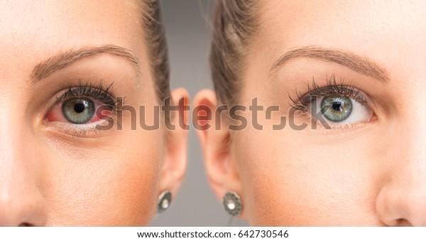 点眼前後の赤目