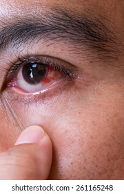 Red eye close up short. Medical and healthcare process.