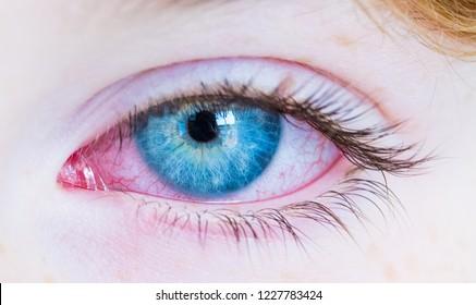 Red eye. Closeup of irritated red bloodshot eye, red and irritated human eye