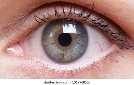 Red eye of a woman