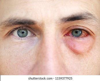 Red eyes. Allergy. Close up of wide open red and irritated human eye