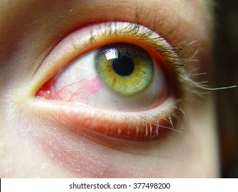 Red female green eye close. Swell wreaths, foreign body pain