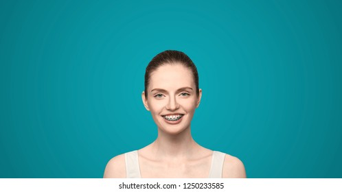 red haired girl with braces on a blue background, photo for the site