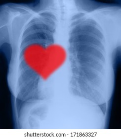 Red heart on x-ray chest