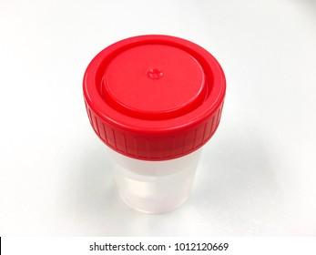 Red lid specimen container.