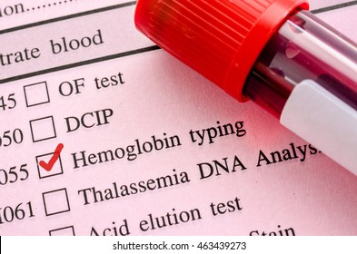 Red mark in screening form request for Hemoglobin typing test (HB) with Blood sample in tube.