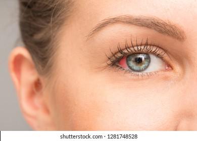Red spot in eye sclera