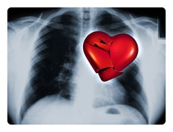 X-ray of a male chest showing one broken red heart