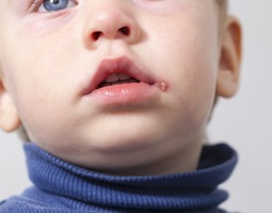 herpes on the mouth of the child