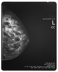 Healthy breast scan X-ray plate.