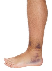 young male with sprained ankle isolated on white background