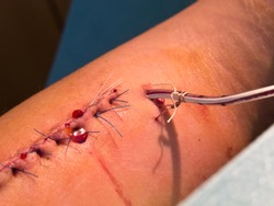 Wounds and Sutures