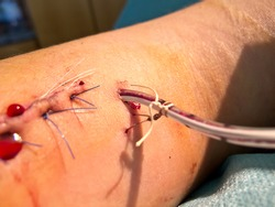 Bleeding suture with drainage