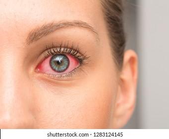 Redness on female eye, macro image