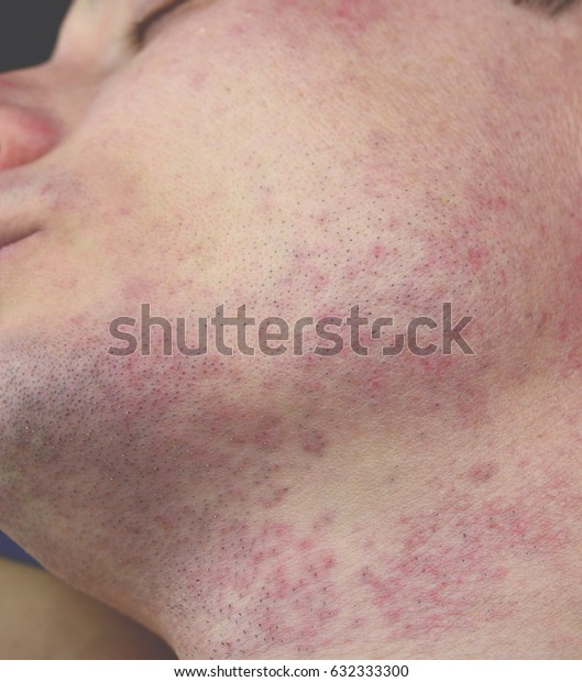 Redness of the skin of a person. Skin allergy on the face