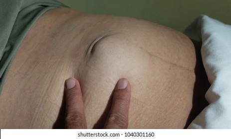 Reducible Para Umbilical Hernia in middle aged moderate obese patient.