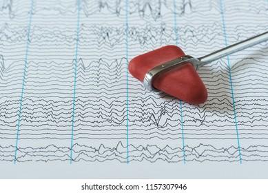 Reflex hammer on background of human brain waves from electroencephalogram