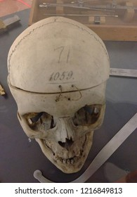 Reggio Emilia/Italy - 06/10/2015: Real human skull preserved in the museum history of the Psychiatry in the ex mental hospital pavilion Cesare Lombroso  an Italian doctor, father of modern criminology