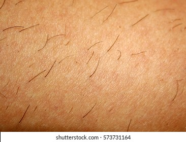 Regrown hair on the skin after shaving. Depilation.