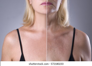 Rejuvenation woman's skin, before after anti aging concept, wrinkle treatment, facelift and plastic surgery, half of body on gray background