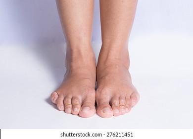 relax feet.