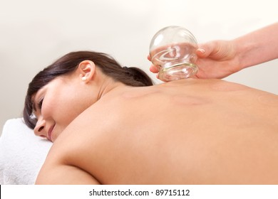 Relaxed female with back exposed after a fire cupping treatment from an acupuncture therapist
