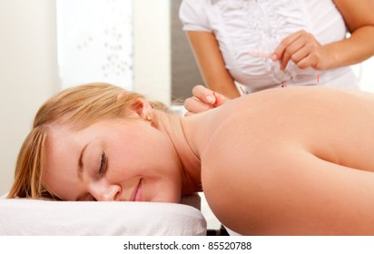 A relaxed woman receiving acupuncture on the back