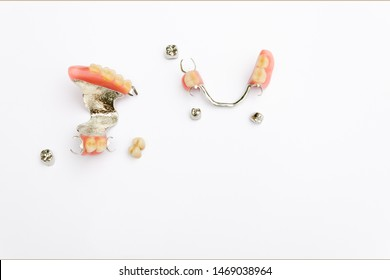 removable clasp prosthesis on the upper and lower jaw with metal and ceramic-metal crowns