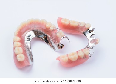 Removable metal partial denture on white background