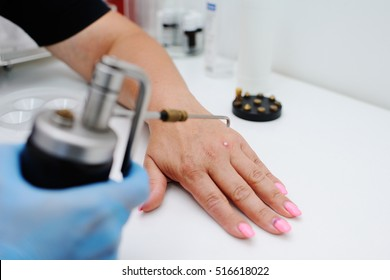 Removal of warts in dermatology clinic. The doctor removes skin formations with special equipment - kriodestruktor. Papillomas, warts, oncology