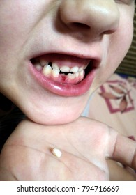 to remove a front tooth from a child with blood